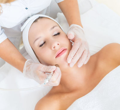 Microdermabrasion-thumb_new